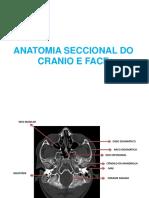 Anatomia Seccional - Cranio