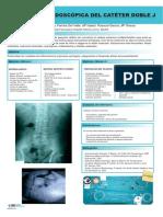 COLOCACION_ENDOSCOPICA_CATETER_DOBLE-J.pdf