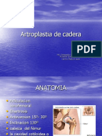 Artroplastia de cadera 1.ppt