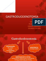 Gastroduodenostomía