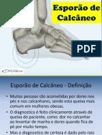 Esporão de Calcanho - Trabalho Podologia.pptx
