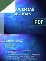 13.Leucemias agudas