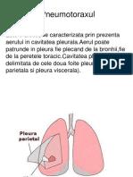 Pneumotoraxul