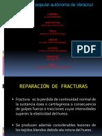 4. Reparación de fracturas
