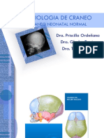 Craneo Neonatal