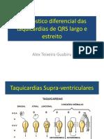 aula-8 -11h00-11h15-diagnostico-diferencial-das-taquicardias-qrs-largo-estreito-dr-alex-guabiru