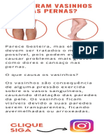 Surgiram Vasinhos Nas Pernas_ - Dr. ALEXANDRE AMATO
