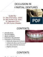 occlusion-in-fixed-partial-denture