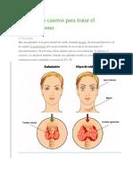 5 Remedios caseros para tratar el hipertiroidismo