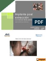 Implante Post Extraccion - C.D. Homero Tavira Jaimes