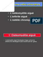 1- Osteomyelite aigue.ppt
