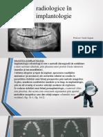 Aspecte-radiologice-în-implantologie