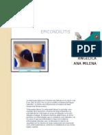 EPICONDILITIS EXPOSICIÒN.pptx