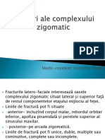 186506577-Fractura-osului-zigomatic.pptx