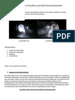 Reiningung der Streulinse vom B6 Xenonscheinwerfer