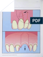 Periodontal reconstructive flaps--classification and surgical considerations