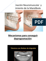 Desprogramación Neuromuscular  y Restablecimiento de la mandibula pegada