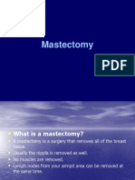 Mastectomy.ppt