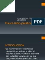 Fisura labio-palatina DIAPOSITIVAS final