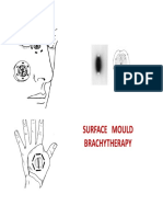 20. Surface Mouls Dr. Agarwal