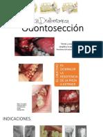 287829358-Odontoseccion (1).pptx