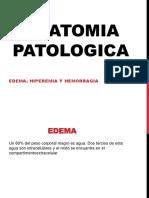 Edema, Hiperemia y Hemorragia
