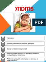 parotiditis-170730211809