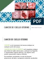 CANCER-DE-CUELLO-UTERINO