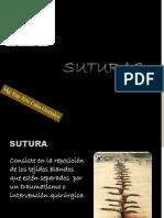 3.SUTURAS