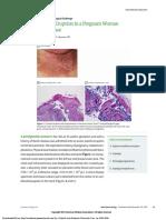 Papilovasicular eruption in pregnanct woman.pdf
