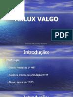Halux Valgo