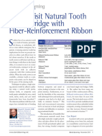 Single Visit Natural Tooth Pontic Bridge with Fiber Reinforcement Ribbon