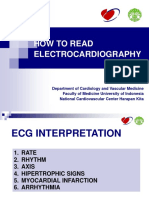 ECG interpretation Tripple weekend I