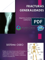 GENERALIDADES DE LAS FRACTURAS PRESENTACION 2020.pptx