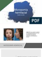 sindrome microsomía hemifacial .pptx