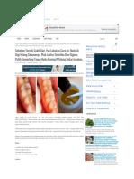 Sebelum Terjadi Sakit Gigi, Yuk Lakukan Cara Ini, Noda di Gigi .pdf