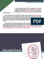 48 Placenta Previa 2.pptx