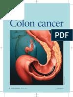 Colon Cancer