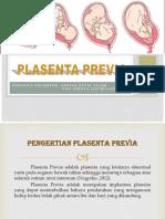 PLASENTA PREVIA.pptx