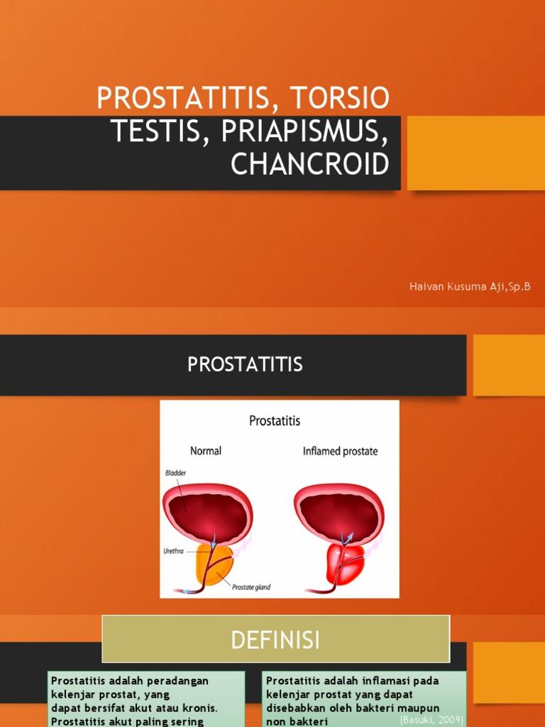 mert mi történik a prosztatitis fájdalmas hólyag szindróma kezelése természetesen