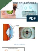 Trastornos de la córnea.pptx