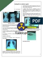 13. Radiografia no abdome agudo (1)
