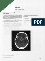 Dialnet-CefaleaIntensaDeInicioBrusco-6370518.pdf
