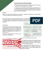 ANEMIA DE CELULAS FALCIFOLMES