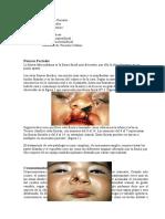 Malformaciones Cráneo- Faciales