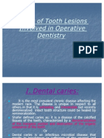 OPERATIVE_Types of Tooth Lesions Involved in Operative Dentistry