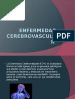 Enfermedad-cerebrovascular
