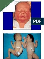 17. Ictericia Neonatal, DxD
