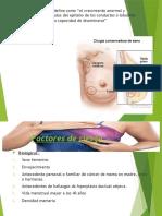 cancer de mama intervencion