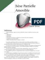 Prothèse Partielle Amovible